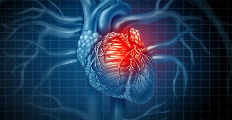 La miocardite è un'infiammazione del muscolo cardiaco che può portare all'aritmia cardiaca e alla morte.