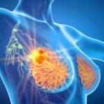 Researchers have identified almost 300 chemicals in everything from hair dye to pesticides that can increase levels of breast cancer-contributing hormones.